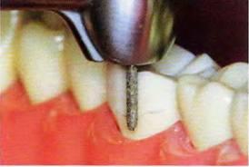 Особенности препорированния опорных зубов